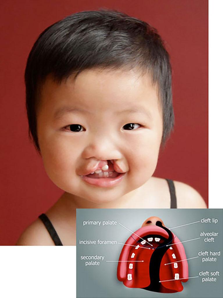 cleft-lip-img
