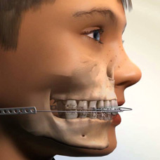 orthodontic-appliances-img1